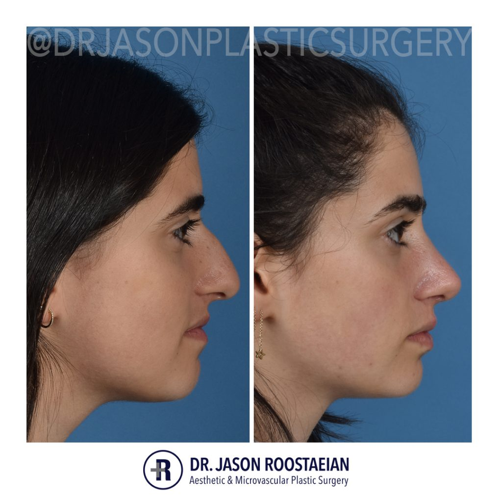 A right lateral before and after view of Dr. Jason Roostaeian's female rhinoplasty patient