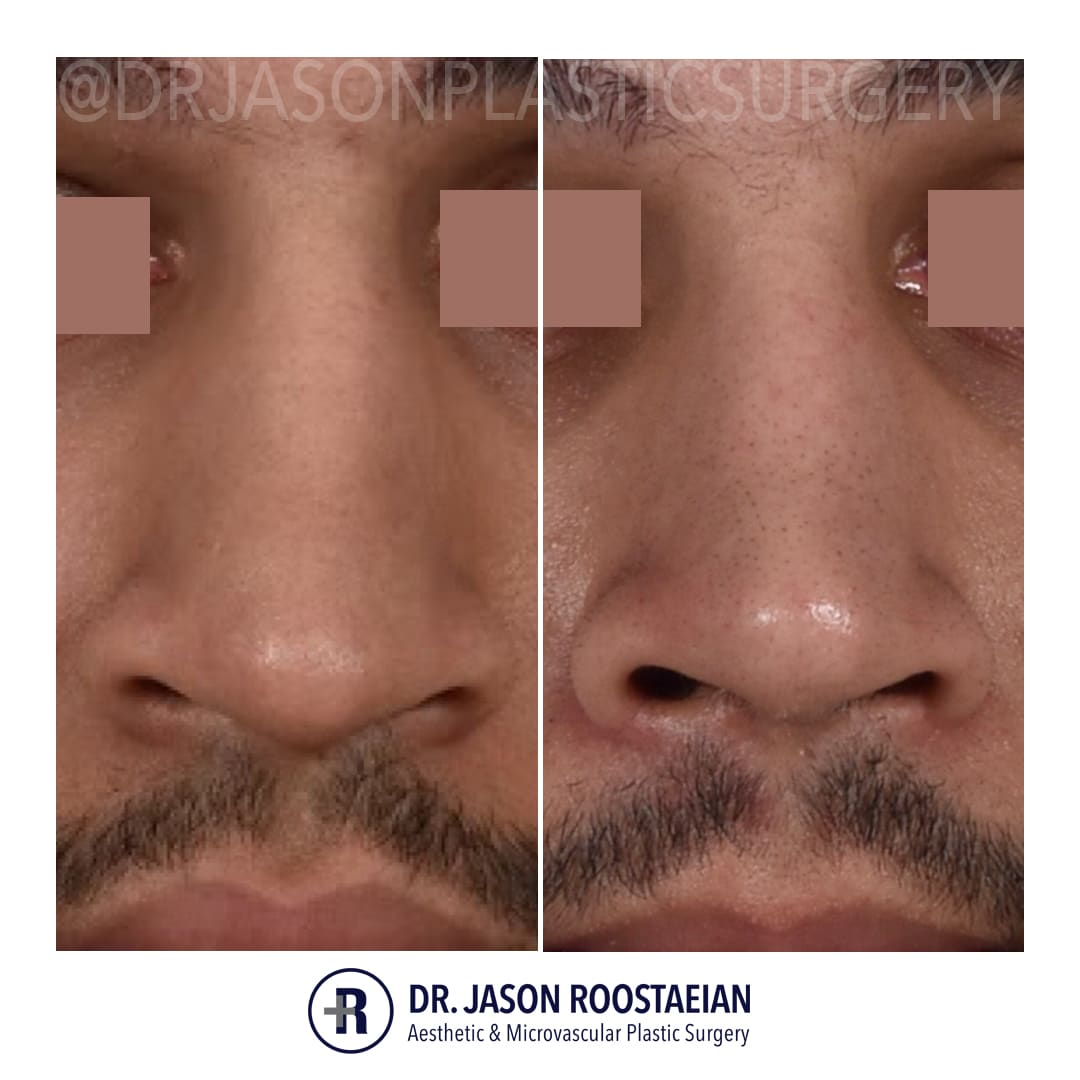 A frontal closeup before and after view of Dr. Jason Roostaeian's male rhinoplasty patient