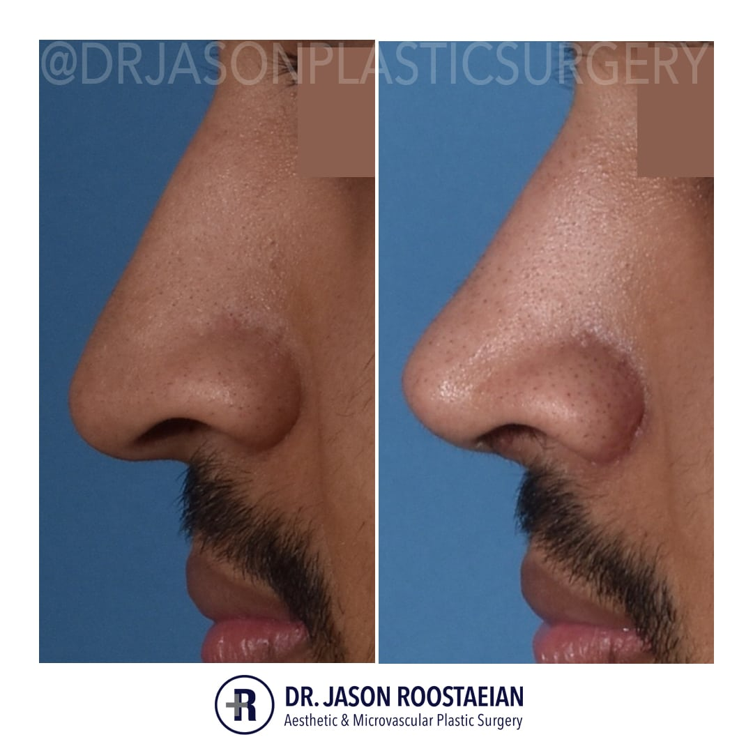 A left lateral closeup before and after view of Dr. Jason Roostaeian's male rhinoplasty patient