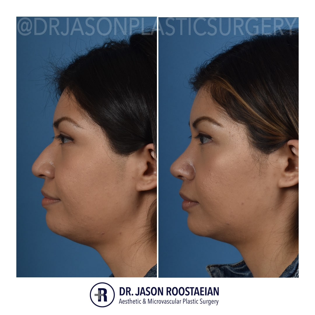 A left lateral before and after view of Dr. Jason Roostaeian's female rhinoplasty patient