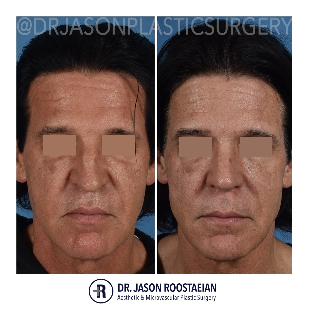 A frontal before and after view of Dr. Jason Roostaeian's male rhinoplasty patient