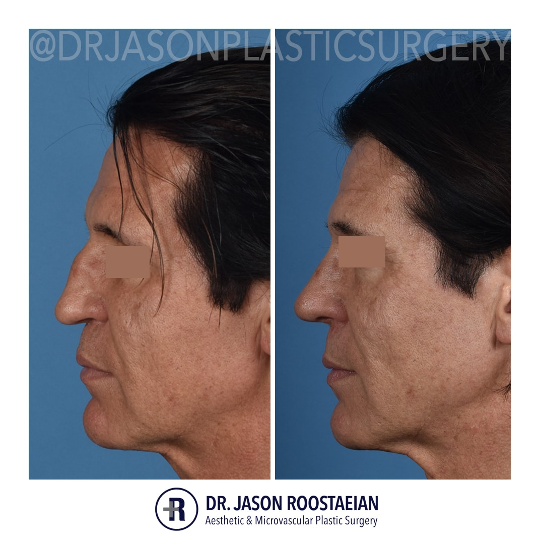 A left lateral before and after view of Dr. Jason Roostaeian's male rhinoplasty patient