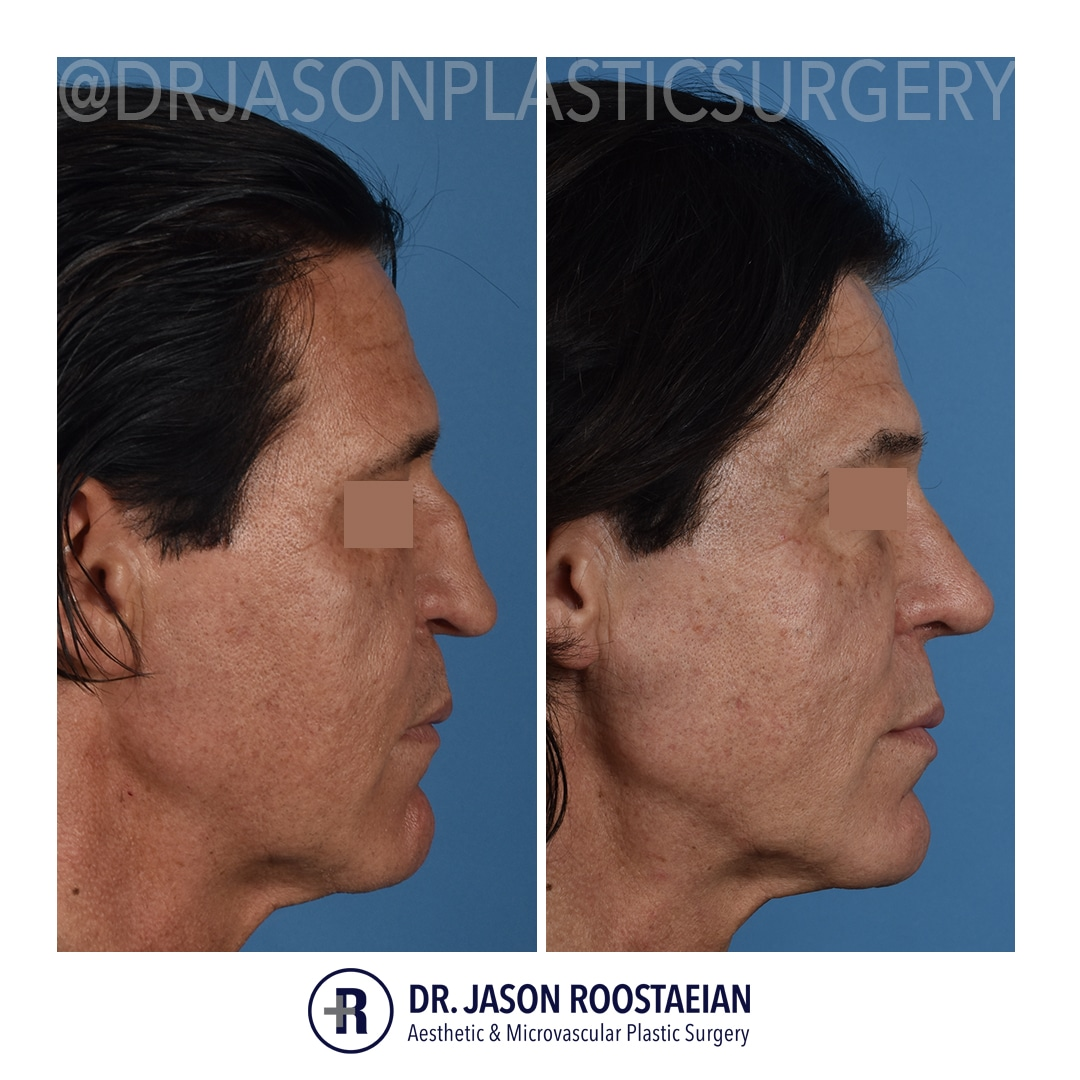A right lateral before and after view of Dr. Jason Roostaeian's male rhinoplasty patient