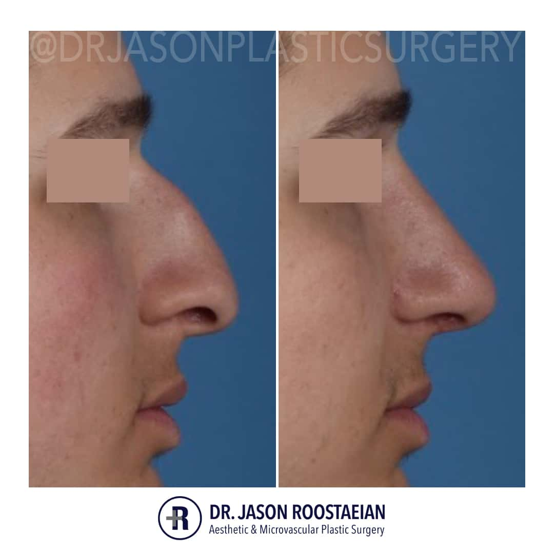 A right lateral closeup before and after view of Dr. Jason Roostaeian's male rhinoplasty patient