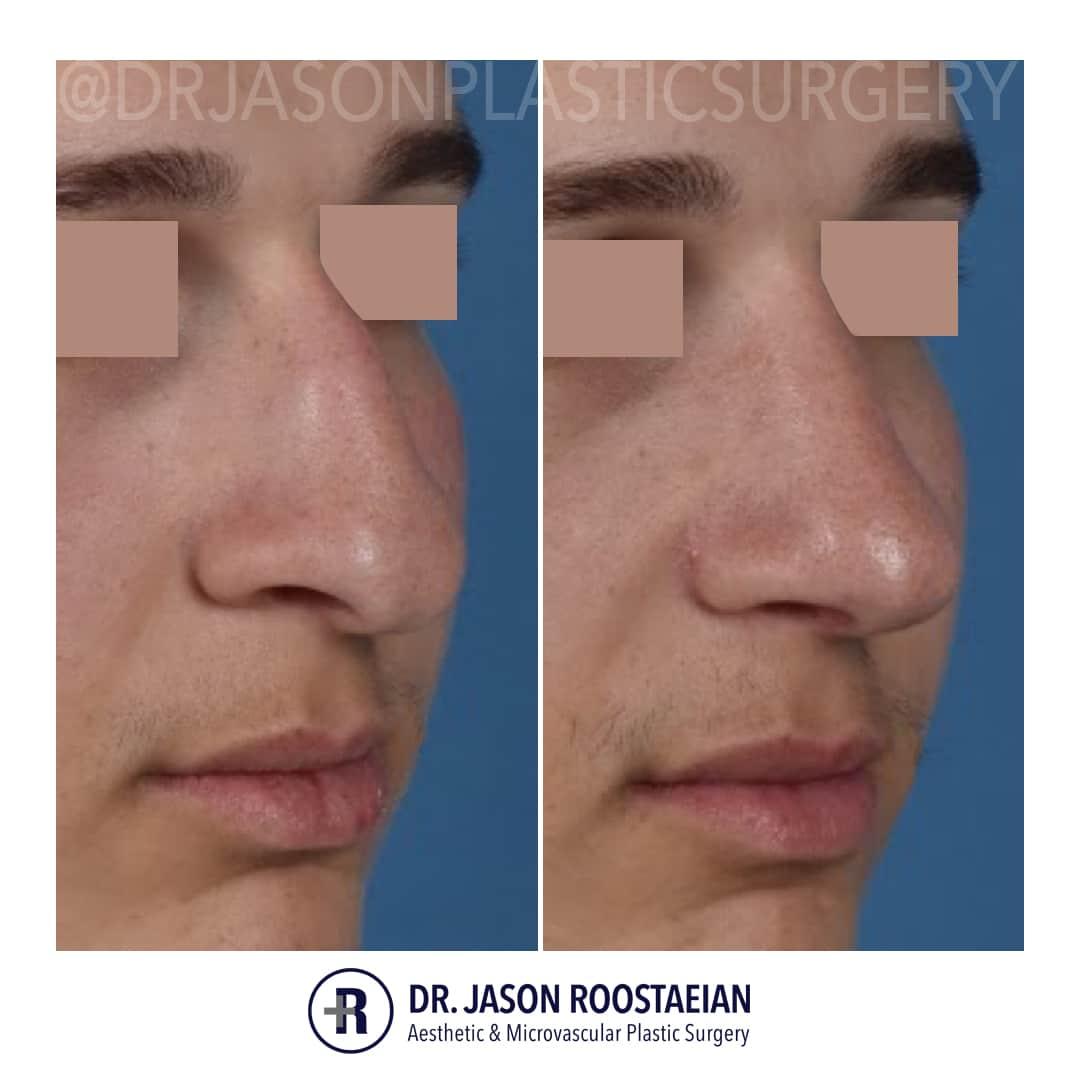 A right oblique closeup before and after view of Dr. Jason Roostaeian's male rhinoplasty patient