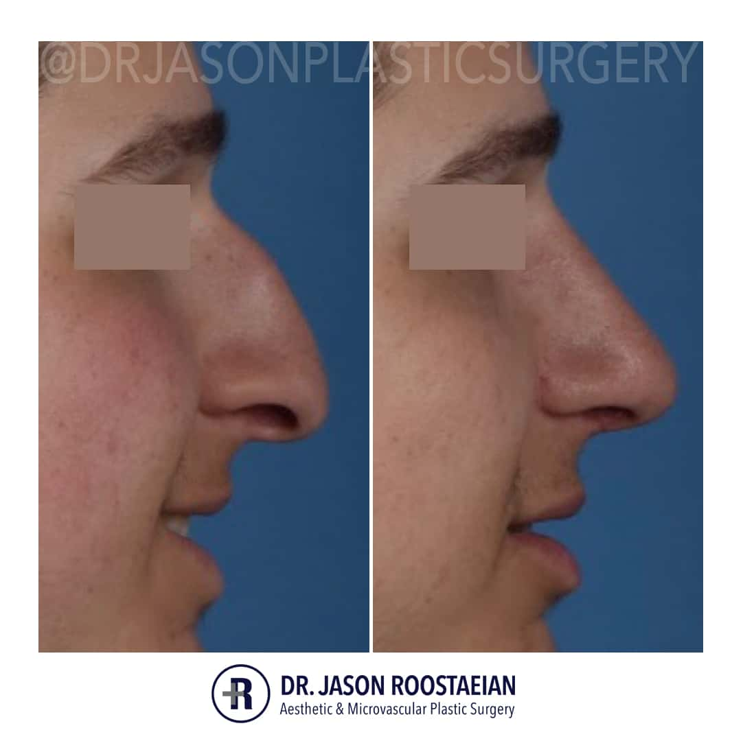 A right lateral smiling closeup before and after view of Dr. Jason Roostaeian's male rhinoplasty patient
