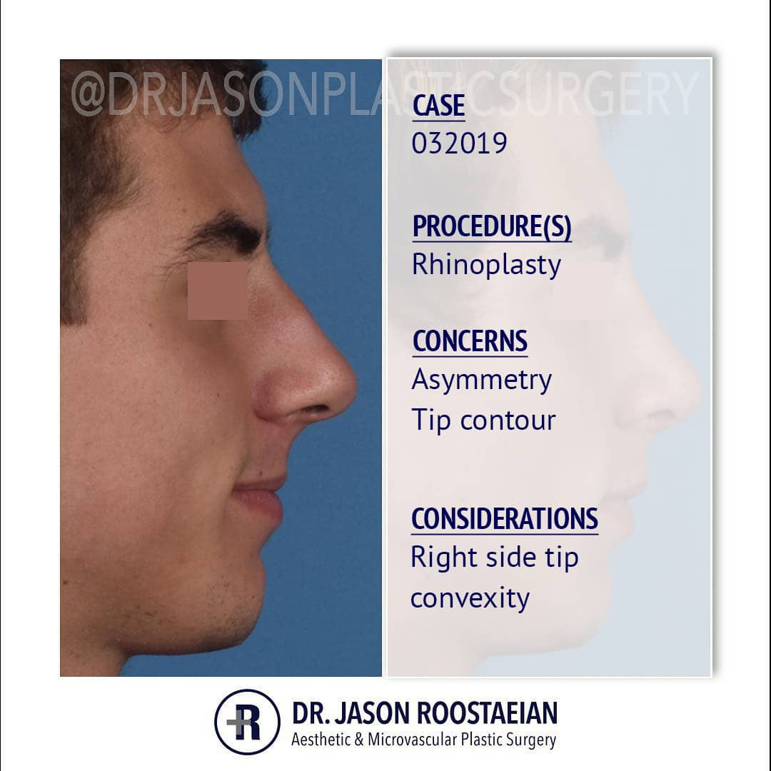 A right lateral description view of Dr. Jason Roostaeian's male rhinoplasty patient