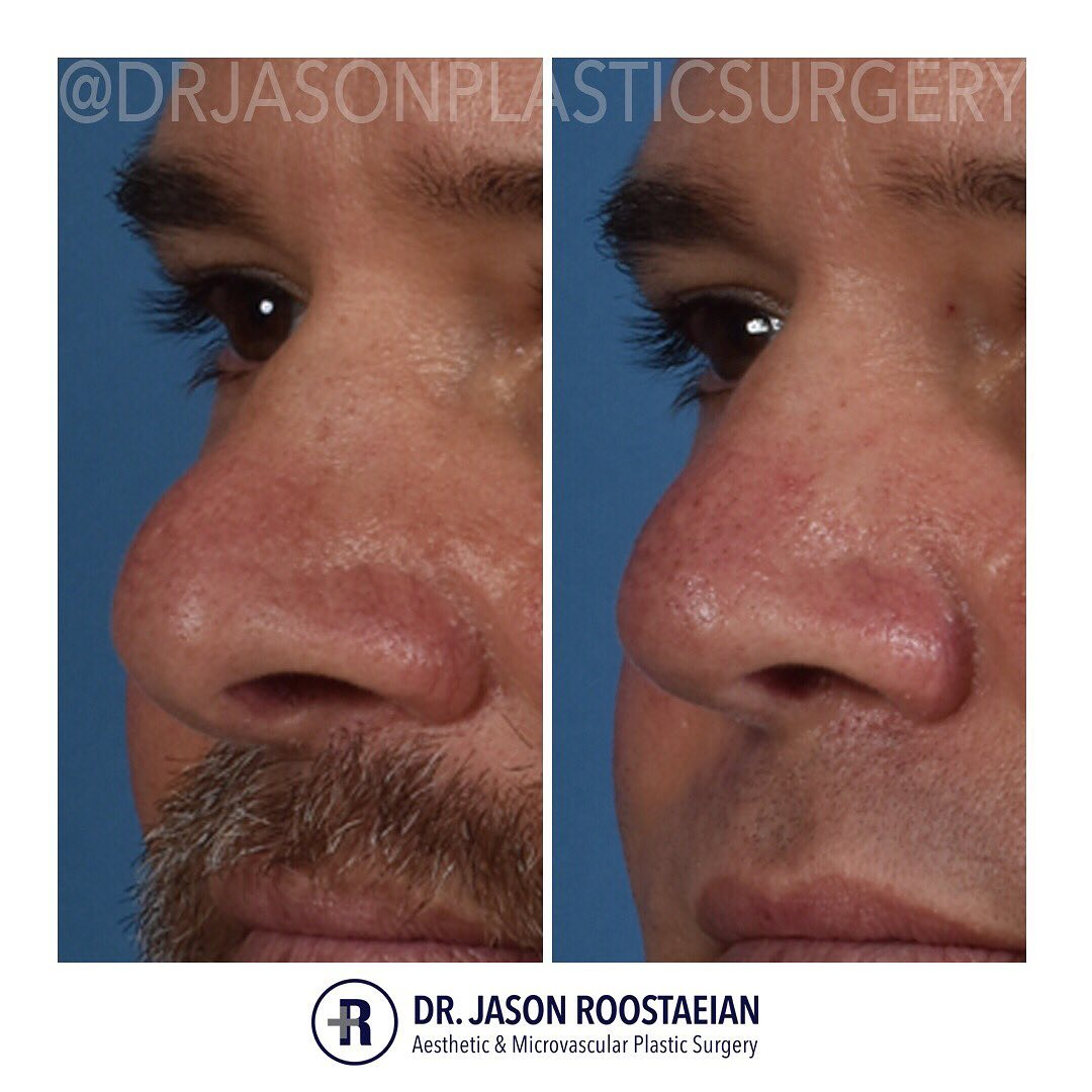 A left oblique closeup before and after view of Dr. Jason Roostaeian's male rhinoplasty patient