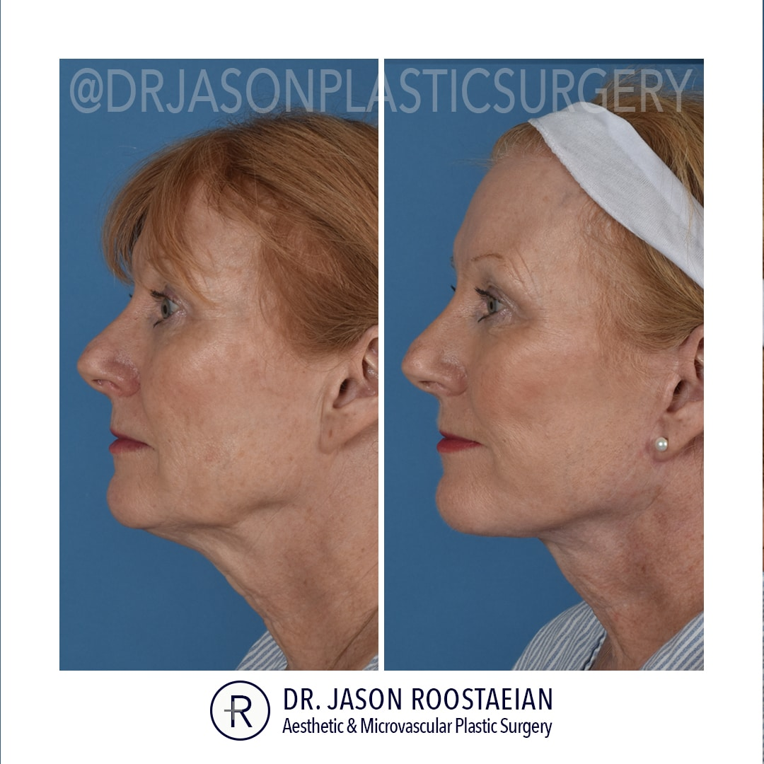 A left lateral before and after view of Dr. Jason Roostaeian's female facelift and neck lift patient