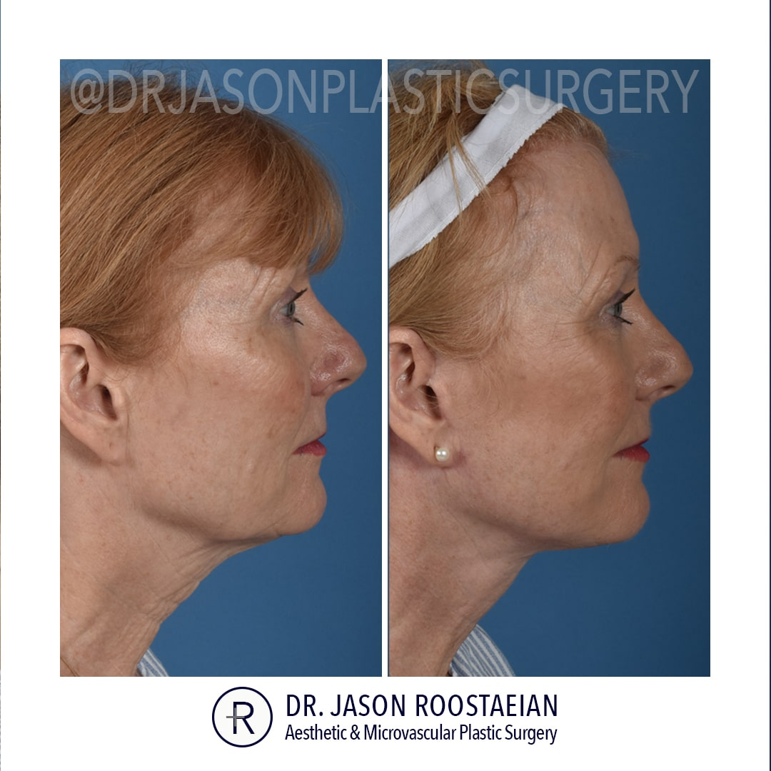 A right lateral before and after view of Dr. Jason Roostaeian's female facelift and neck lift patient