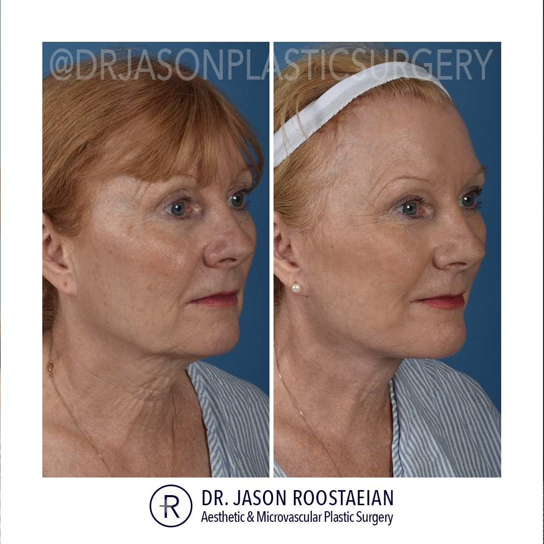 A right oblique before and after view of Dr. Jason Roostaeian's female facelift and neck lift patient