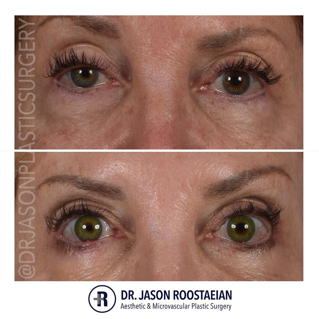 A frontal closeup before and after view of Dr. Jason Roostaeian's female brow lift and blepharoplasty patient