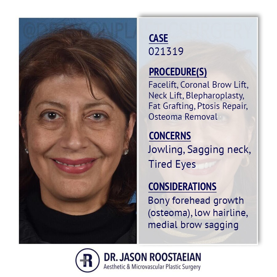 A frontal description view of Dr. Jason Roostaeian's female facelift neck lift and brow lift patient