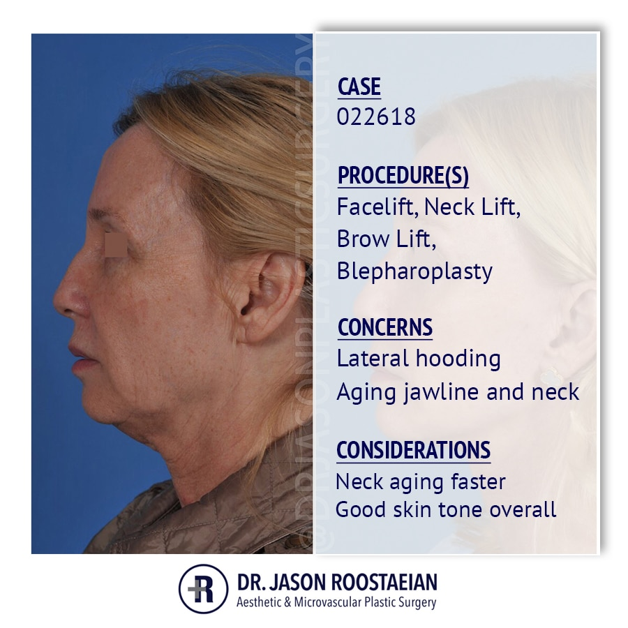 A left lateral description view of Dr. Jason Roostaeian's female facelift neck lift and brow lift patient