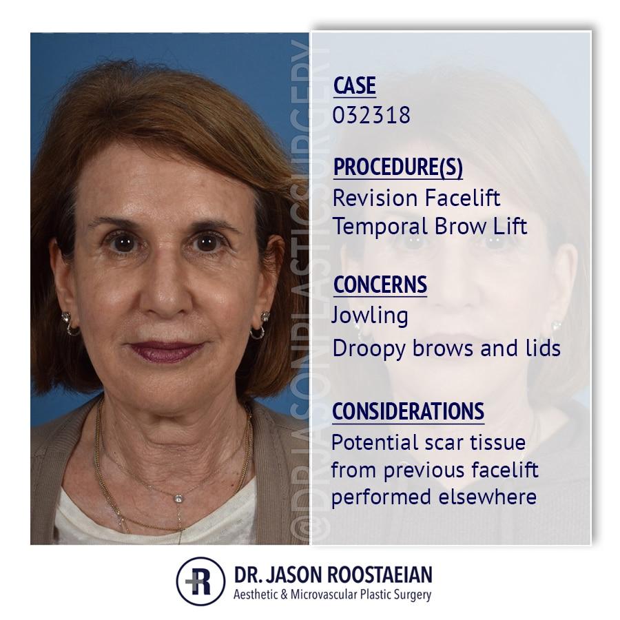 A frontal description view of Dr. Jason Roostaeian's female facelift and neck lift patient