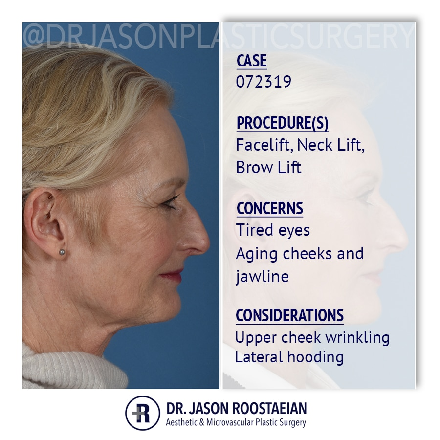 A right lateral description view of Dr. Jason Roostaeian's female facelift neck lift and brow lift patient