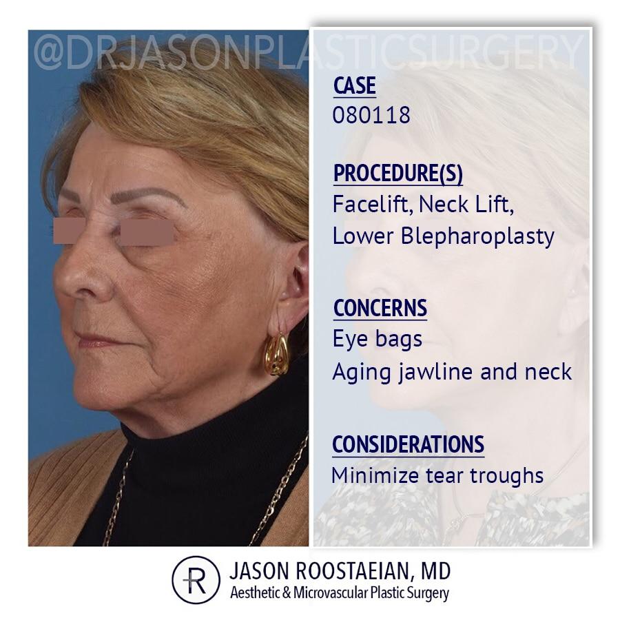 A left oblique description view of Dr. Jason Roostaeian's female facelift neck lift and brow lift patient