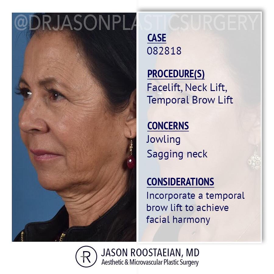 A left oblique description view of Dr. Jason Roostaeian's female facelift neck and brow lift patient