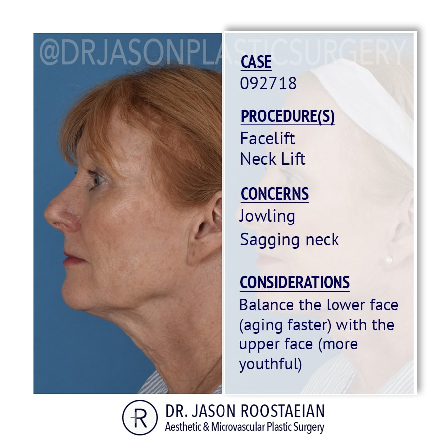 A left lateral description view of Dr. Jason Roostaeian's female facelift and neck lift patient