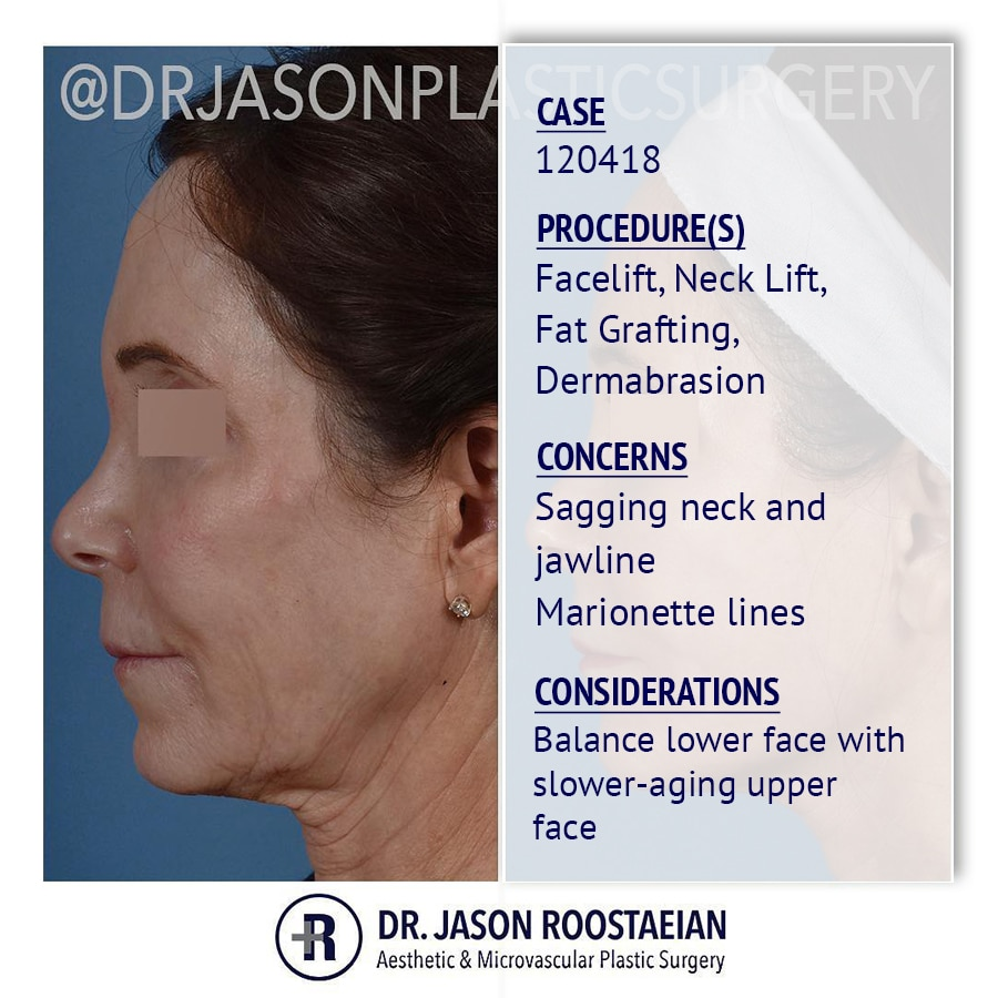 A left lateral description view of Dr. Jason Roostaeian's female facelift neck lift and dermabrasion patient