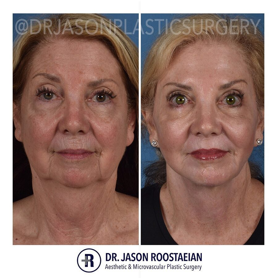 A frontal before and after view of Dr. Jason Roostaeian's female facelift and neck lift patient