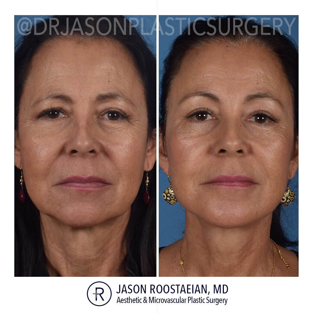A frontal before and after view of Dr. Jason Roostaeian's female facelift neck and brow lift patient
