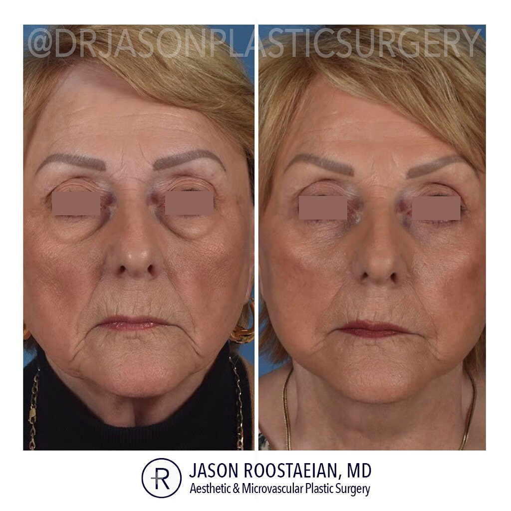 A frontal before and after view of Dr. Jason Roostaeian's female facelift neck lift and brow lift patient