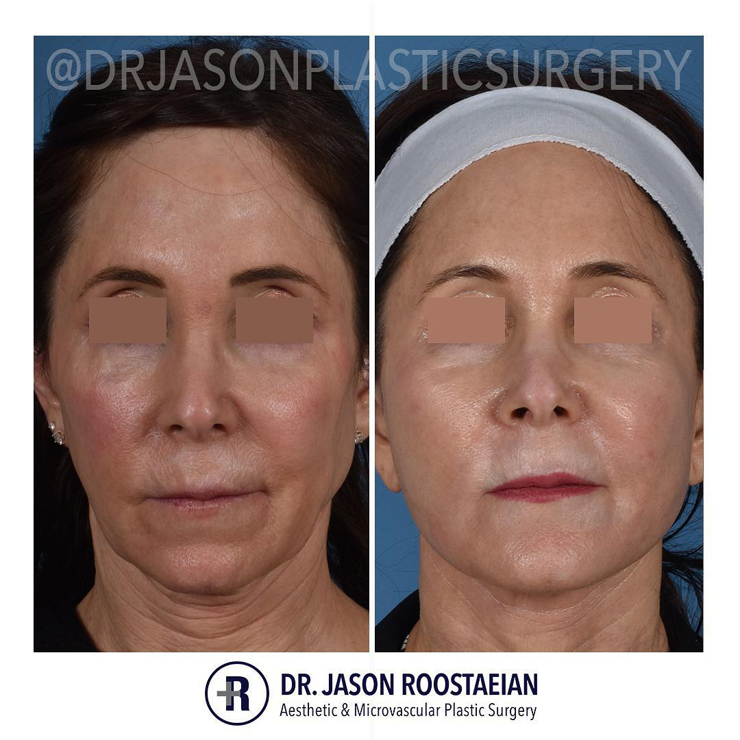 A frontal before and after view of Dr. Jason Roostaeian's female facelift neck lift and dermabrasion patient