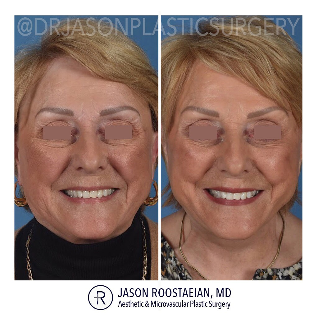 A frontal smiling before and after view of Dr. Jason Roostaeian's female facelift neck lift and brow lift patient