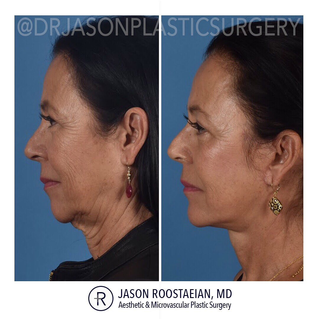 A left lateral before and after view of Dr. Jason Roostaeian's female facelift neck and brow lift patient