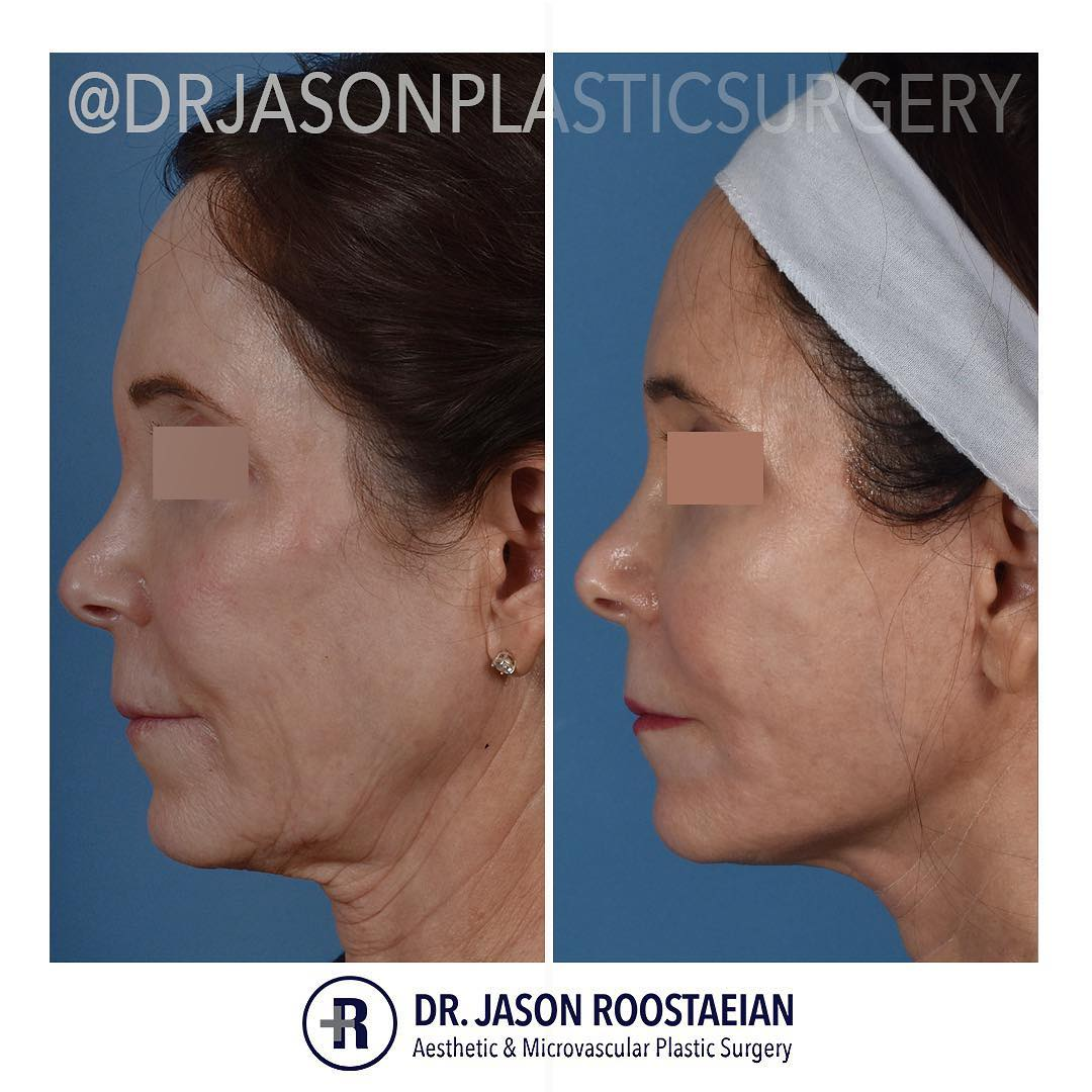 A left lateral before and after view of Dr. Jason Roostaeian's female facelift neck lift and dermabrasion patient