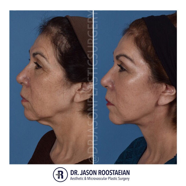 A left lateral before and after view of Dr. Jason Roostaeian's female facelift neck lift and brow lift patient