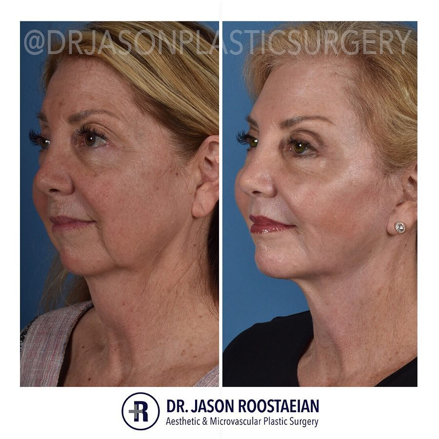 A left oblique before and after view of Dr. Jason Roostaeian's female facelift and neck lift patient