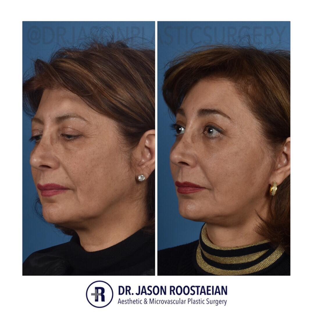 A left oblique before and after view of Dr. Jason Roostaeian's female facelift neck lift and brow lift patient