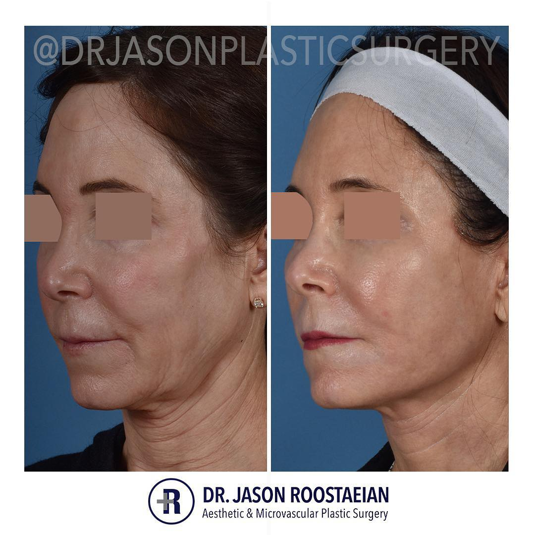 A left oblique before and after view of Dr. Jason Roostaeian's female facelift neck lift and dermabrasion patient