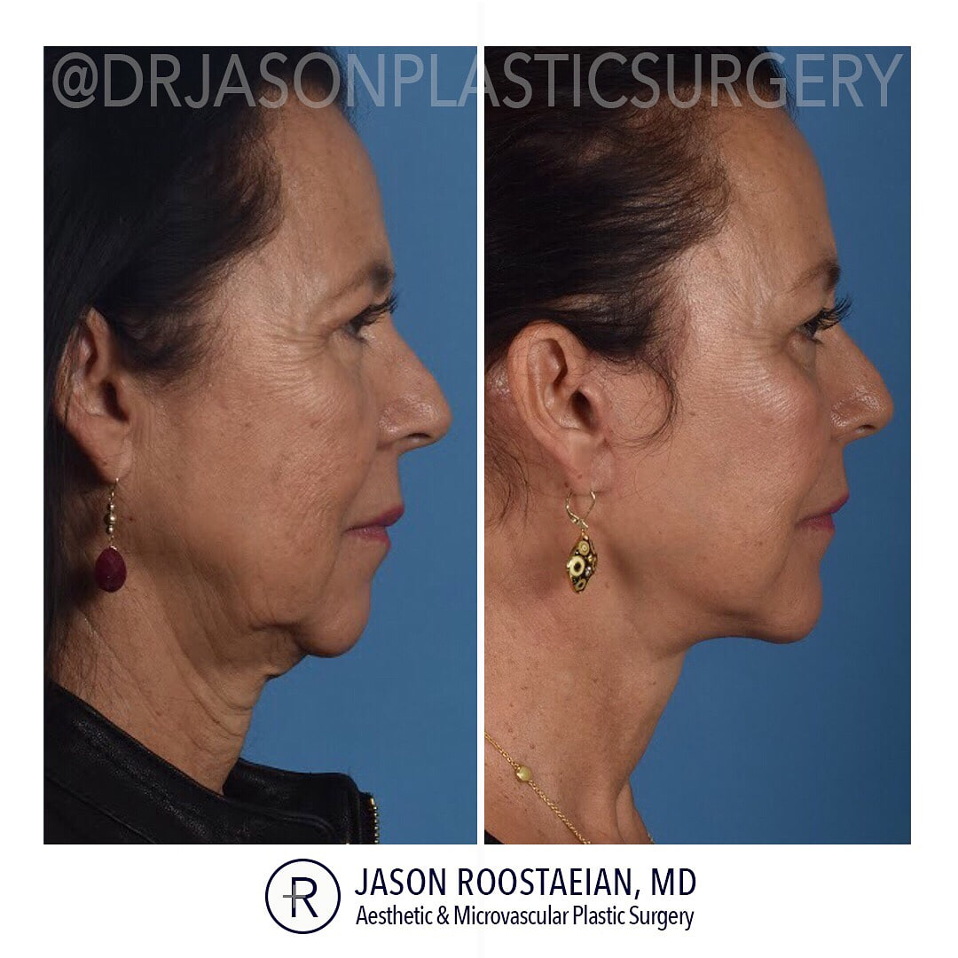 A right lateral before and after view of Dr. Jason Roostaeian's female facelift neck and brow lift patient
