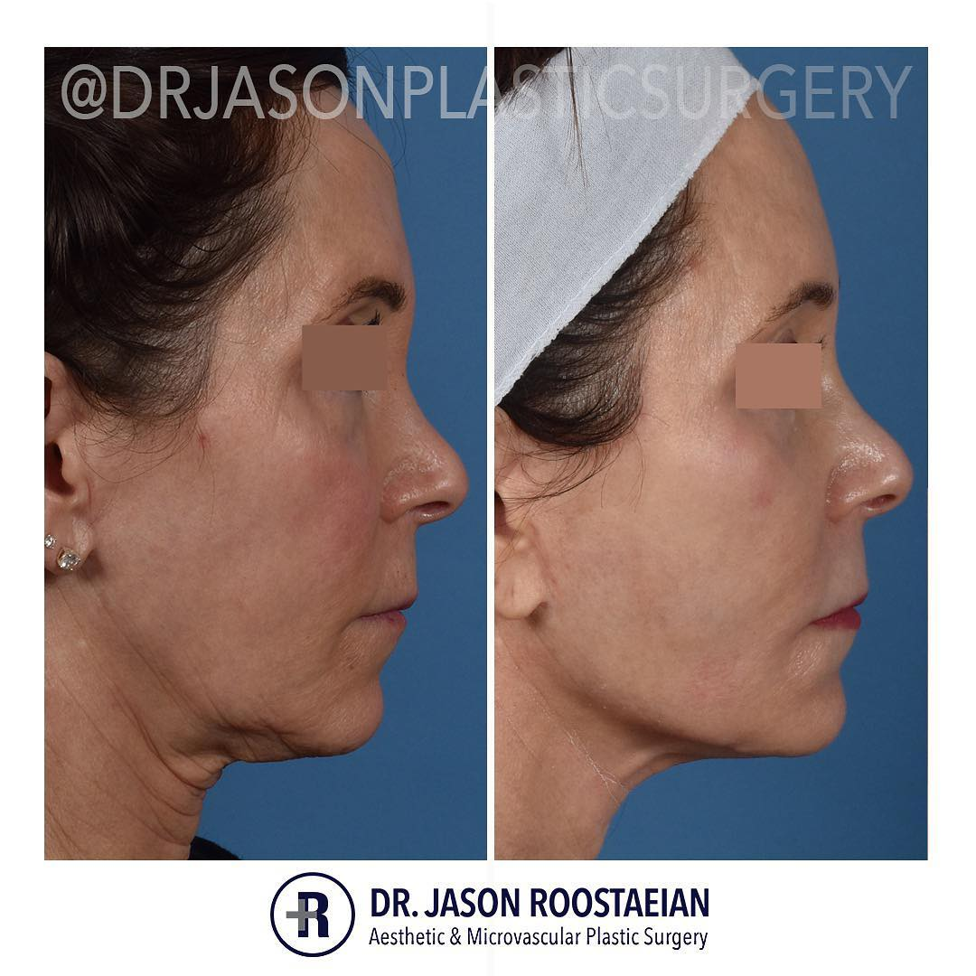 A right lateral before and after view of Dr. Jason Roostaeian's female facelift neck lift and dermabrasion patient