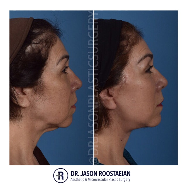 A right lateral before and after view of Dr. Jason Roostaeian's female facelift neck lift and brow lift patient