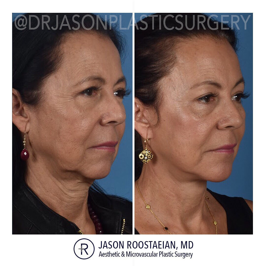A right oblique before and after view of Dr. Jason Roostaeian's female facelift neck and brow lift patient