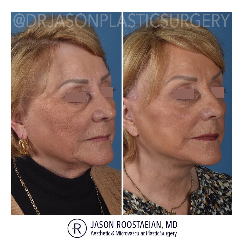 A right oblique before and after view of Dr. Jason Roostaeian's female facelift neck lift and brow lift patient