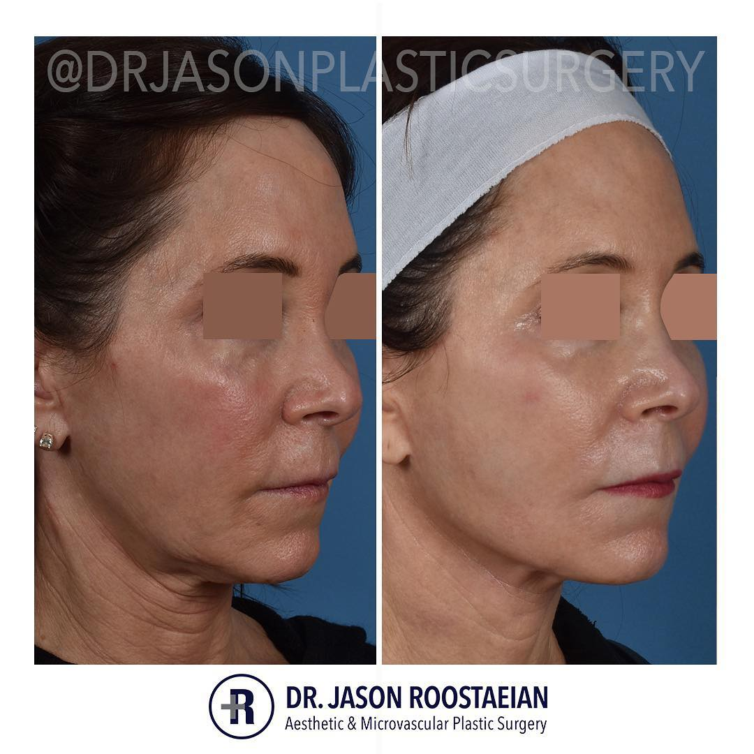 A right oblique before and after view of Dr. Jason Roostaeian's female facelift neck lift and dermabrasion patient