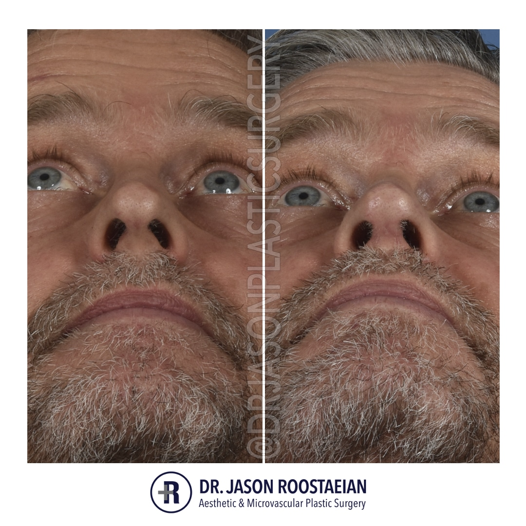 A basal before and after photograph of Dr. Jason Roostaeian's male rhinoplasty patient