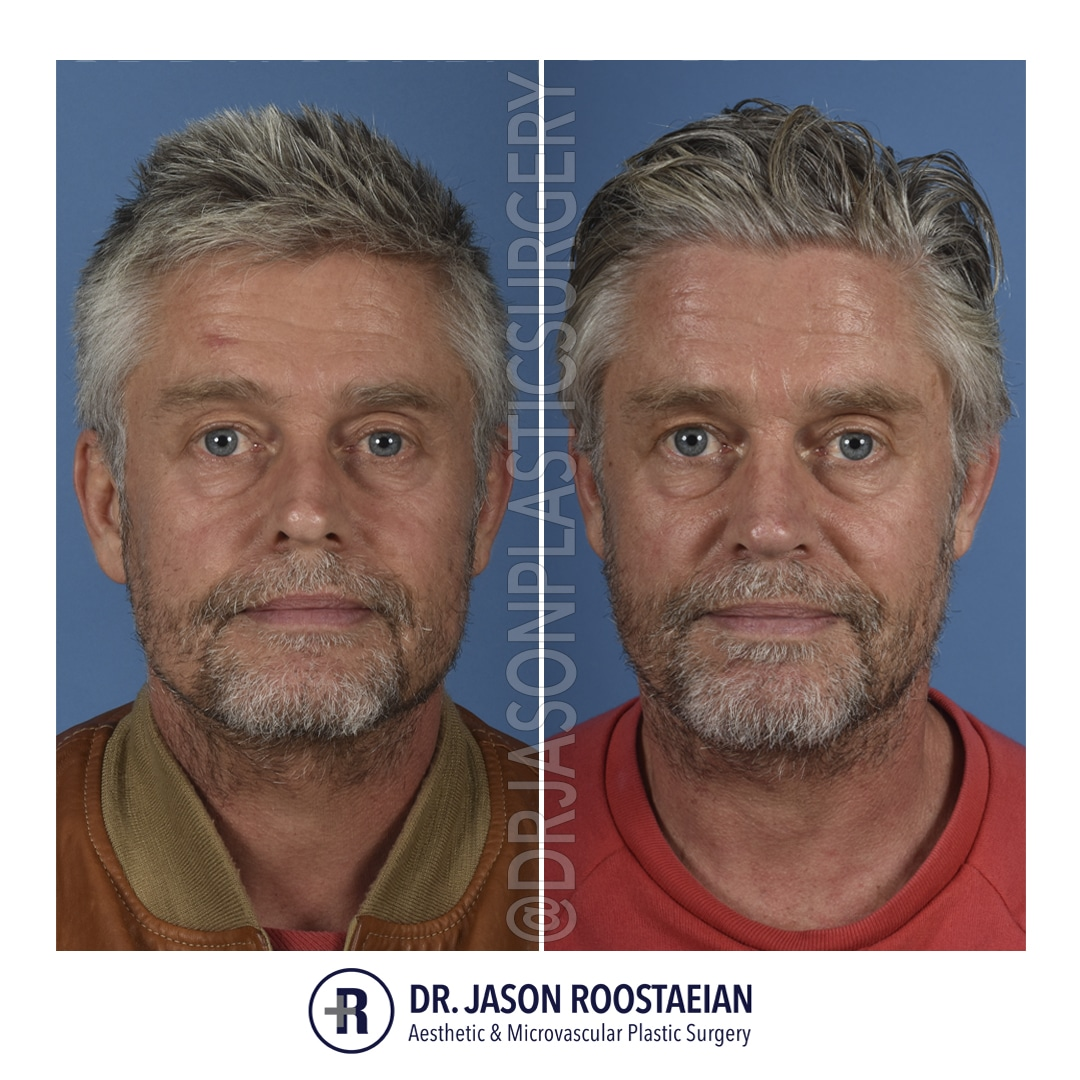 A frontal before and after photograph of Dr. Jason Roostaeian's male rhinoplasty patient