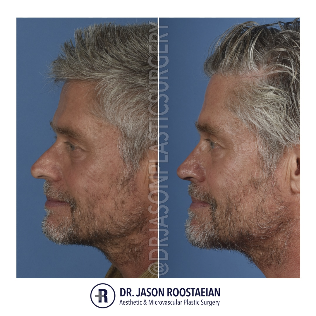 A left lateral before and after photograph of Dr. Jason Roostaeian's male rhinoplasty patient