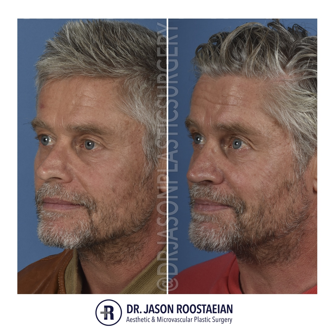 A left oblique before and after photograph of Dr. Jason Roostaeian's male rhinoplasty patient