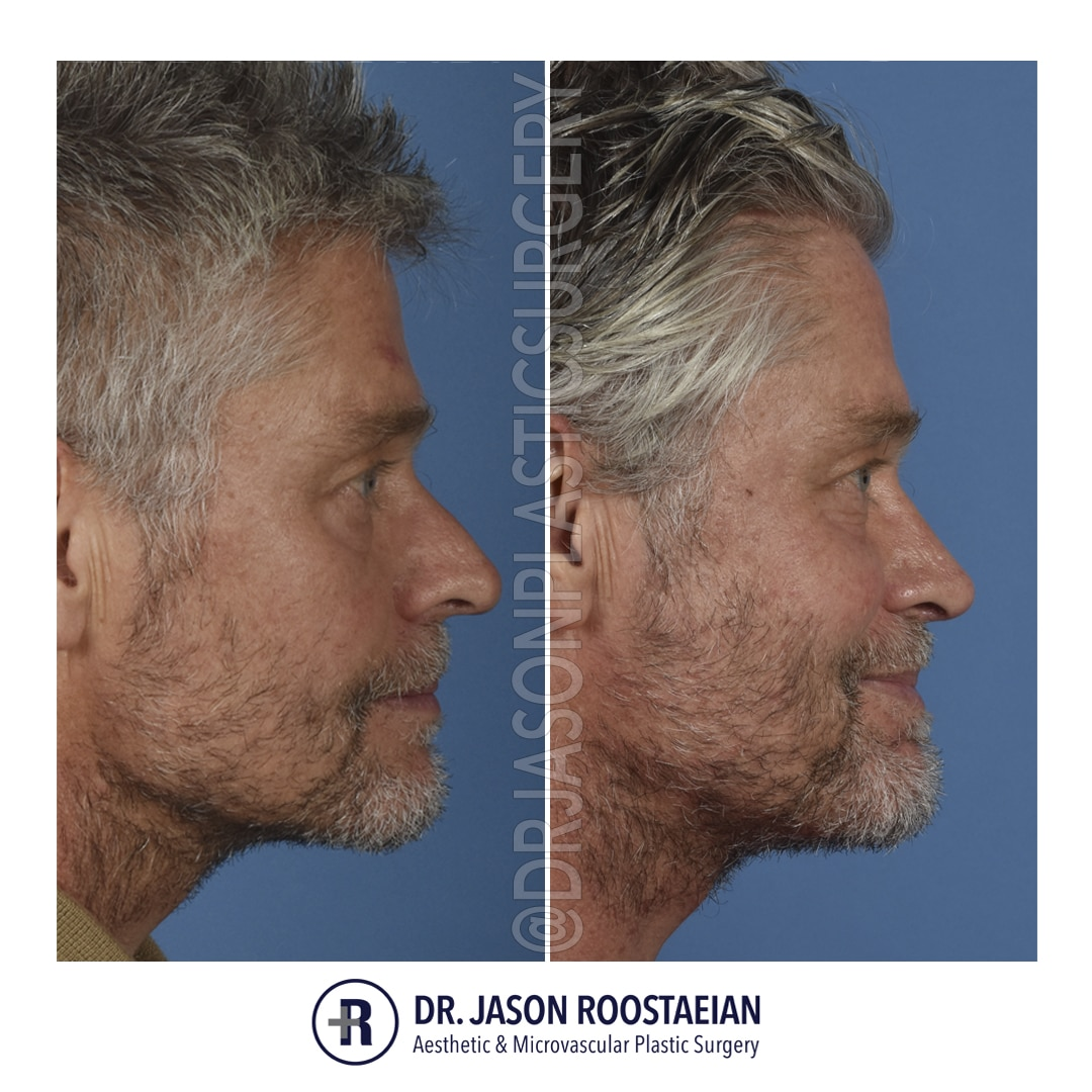 A right lateral before and after photograph of Dr. Jason Roostaeian's male rhinoplasty patient