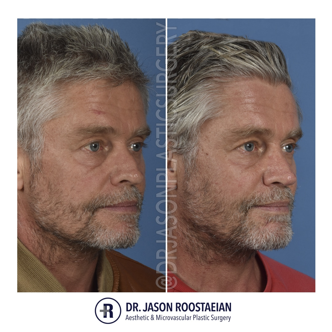 A right oblique before and after photograph of Dr. Jason Roostaeian's male rhinoplasty patient