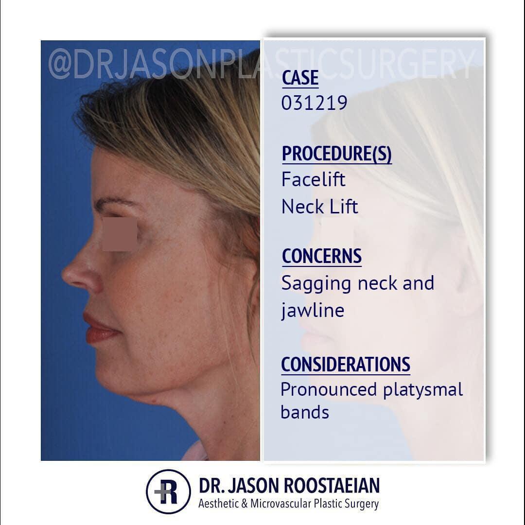 A left lateral description view of Dr. Jason Roostaeian's female facelift neck lift patient