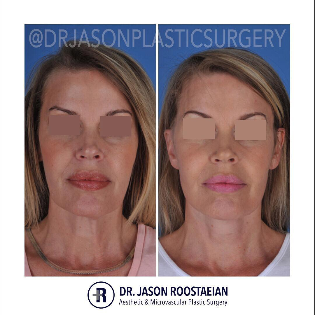 A frontal before and after view of Dr. Jason Roostaeian's female facelift neck lift patient