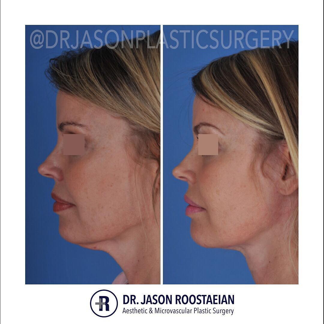 A left lateral before and after view of Dr. Jason Roostaeian's female facelift neck lift patient
